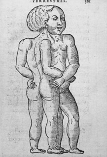 Ambroise Pare, Siamese twins illustrated, c. unknown | by brain_blogger