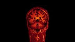 MRI brain scan on Vimeo | by Jon Olav