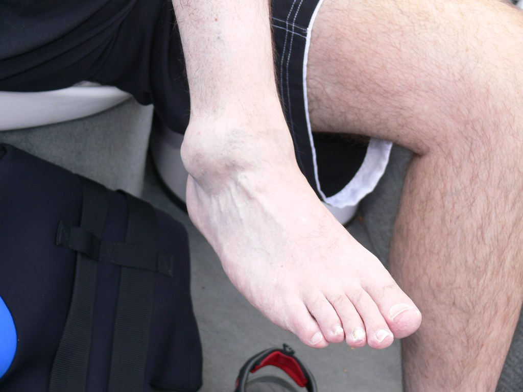 A rolled, swollen ankle   by DaveDoo   SonnyandSandy   Flickr