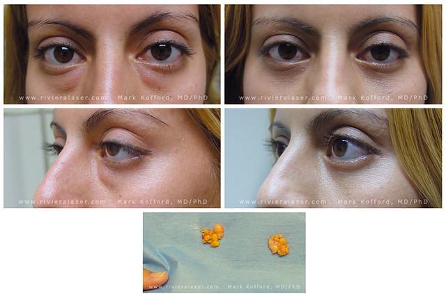 Laser Eyelid Surgery | Laser Eyelid Surgery: Before, 7 Days