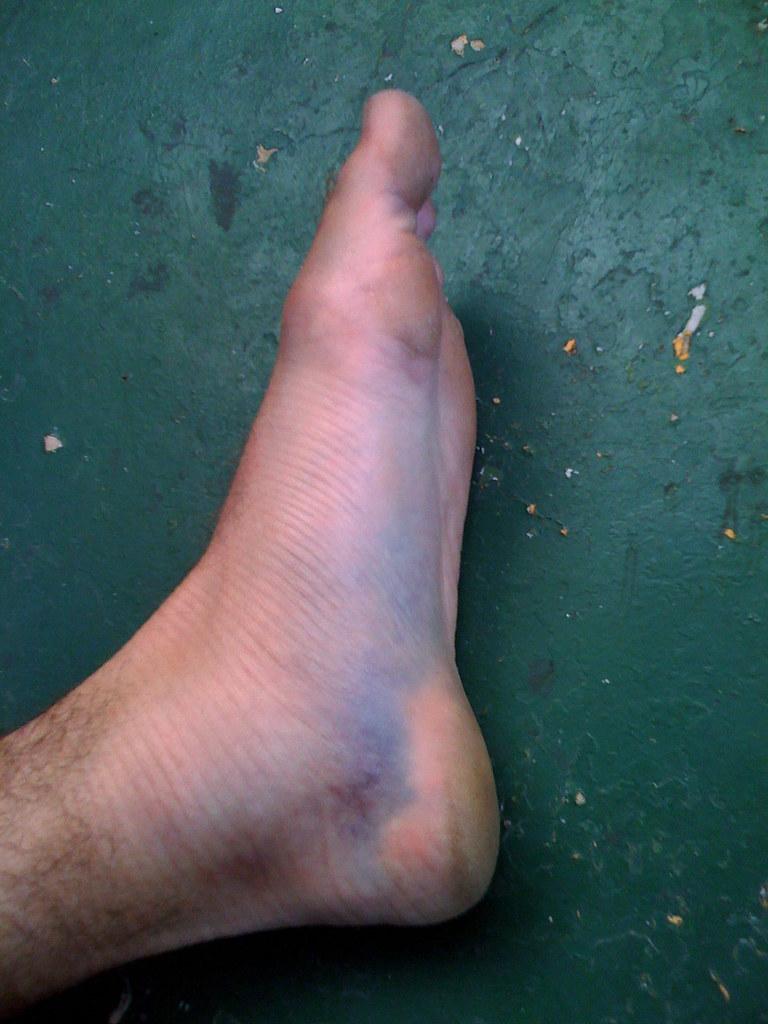 Image result for crack feet