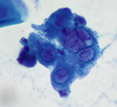 Herpes-Infected Cells in SurePath Pap Smear | by euthman