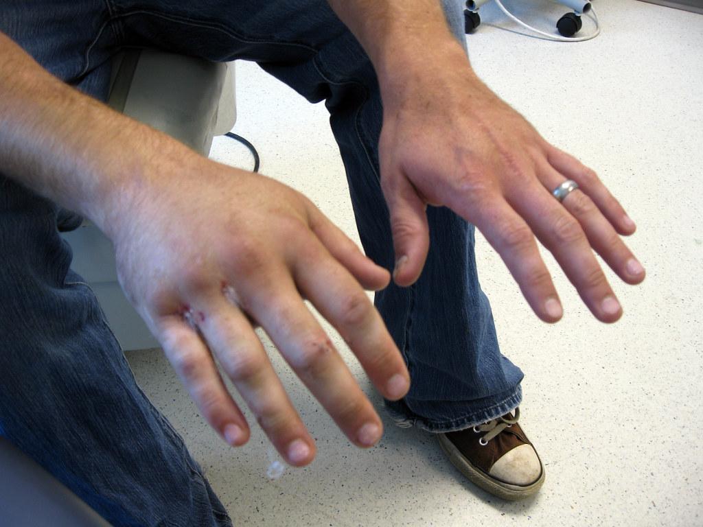 Broken Hand Old Town Drafting Flickr