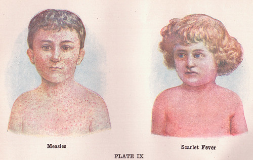Measles and Scarlet Fever | by perpetualplum