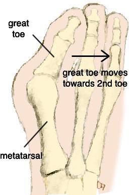 bunion diagram | by northcoast footcare bunion diagram | by northcoast  footcare