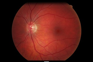 retinal imaging (2011) | by justgrimes