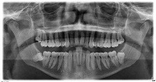 x-ray | by trey.menefee