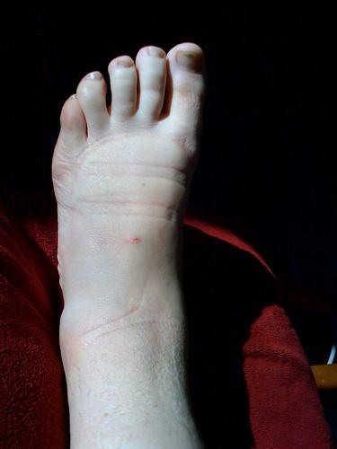 Pitiful swollen, sprained ankle   by Shel Kennon