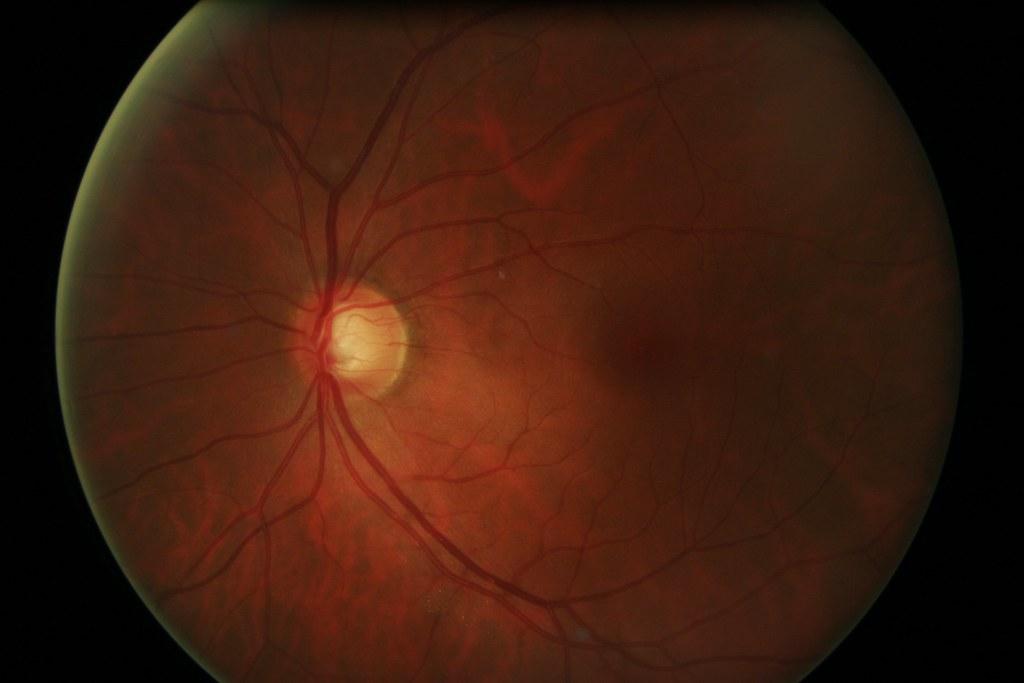 James Neill's Left Eye