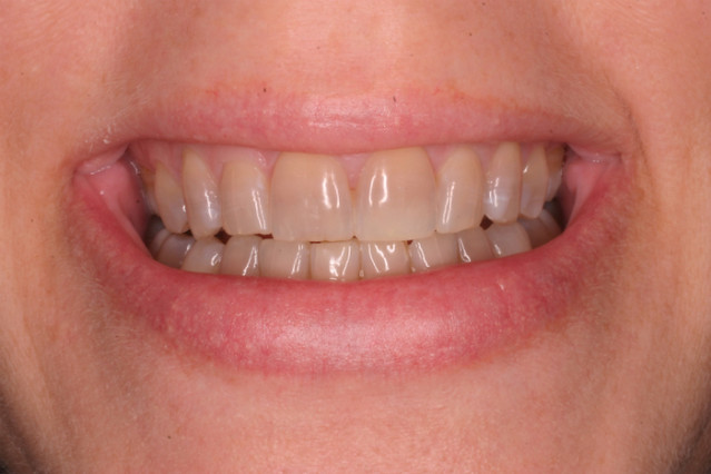 Porcelain Crowns Before White Counter Whitening Products Flickr