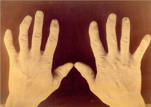 Hands of Douglas Allison (NS 31), National Museum of Health and Medicine | by medicalmuseum
