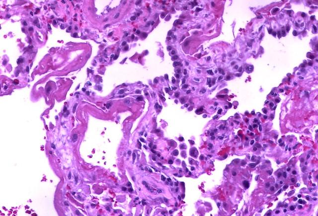 Diffuse alveolar damage (DAD)