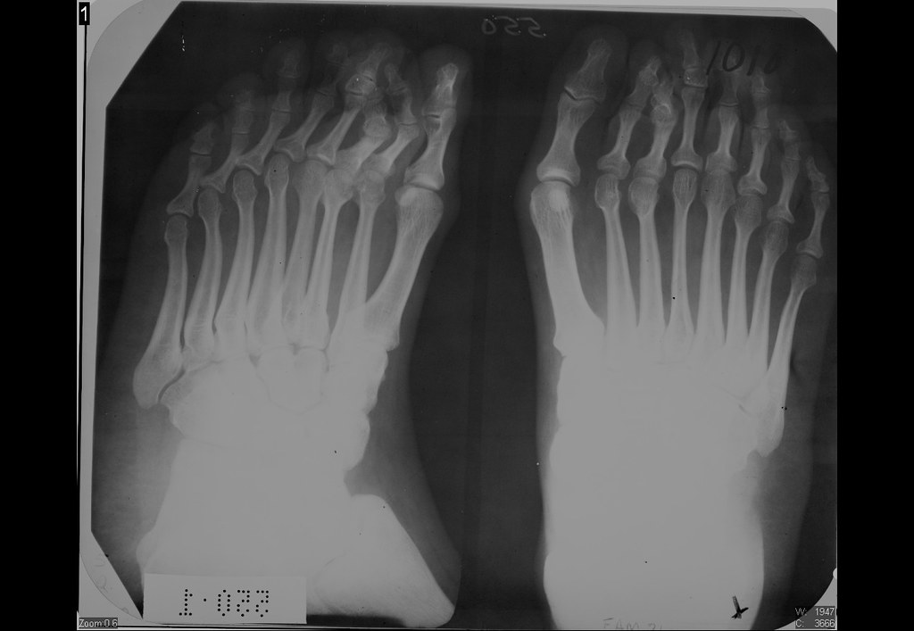 eight toes.Ser1.Img1