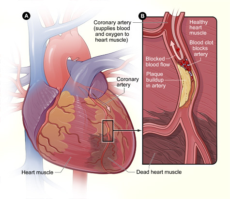 Image result for blood clot artery heart