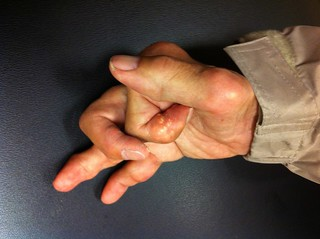 gouty hand arthritis 3 | by handarmdoc