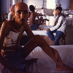 Tuberculosis Patient, New Delhi, India