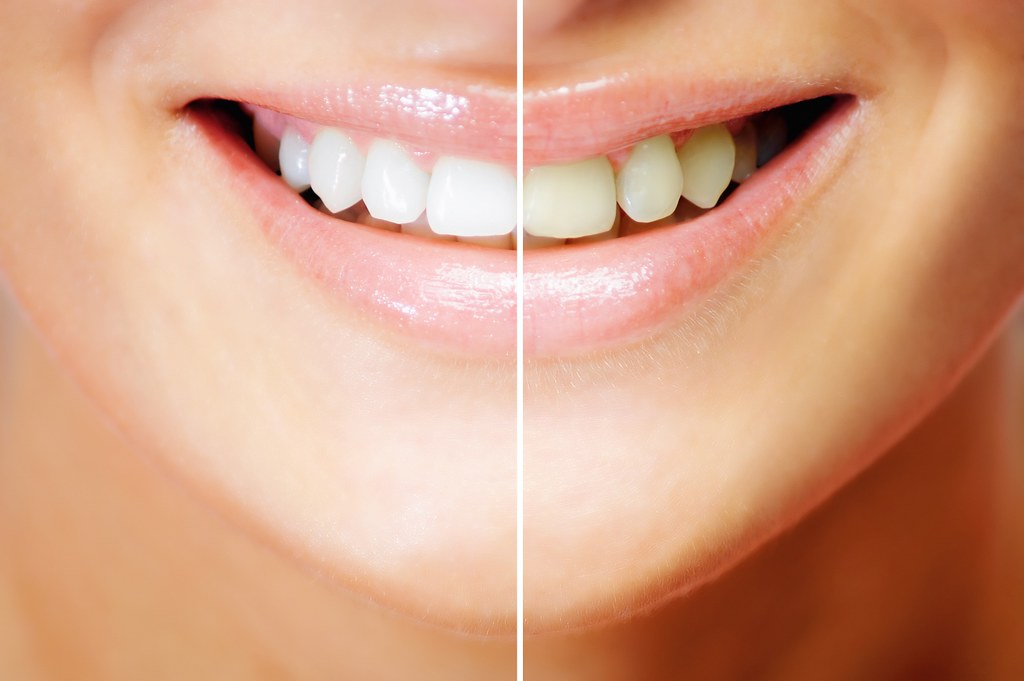 teeth-whitening-results2