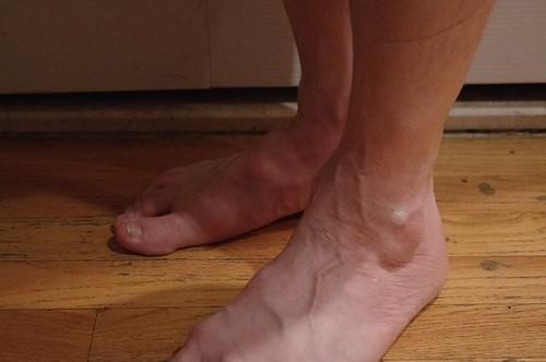 Feet, ankles & legs 8