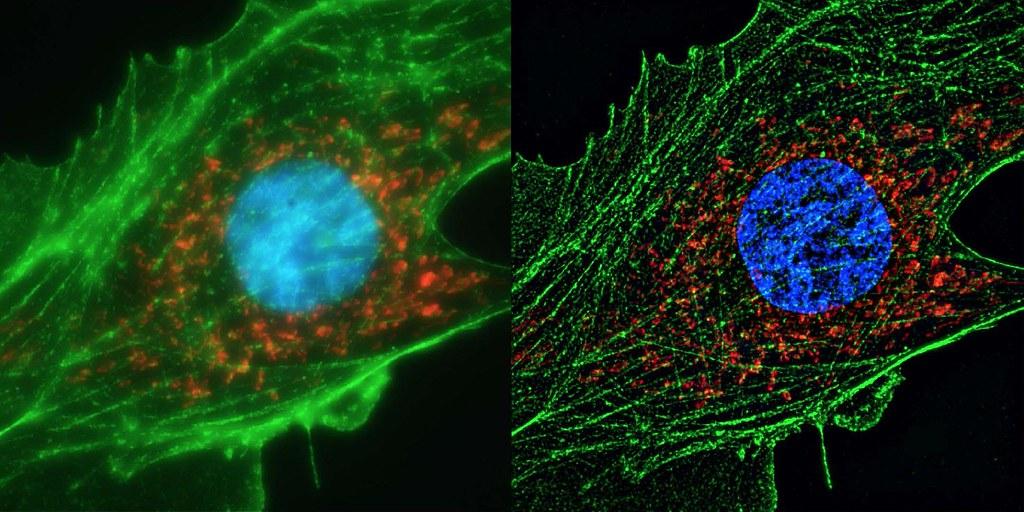 Hücredeki Virüslerin Hareketlerini Görmek Artık Mümkün