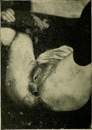 Image from page 392 of Hermaphroditismus beim Menschen