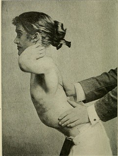 """Image from page 205 of """"A treatise on orthopedic surgery"""" (1910) 