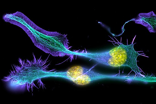 Developing nerve cells | by ZEISS Microscopy