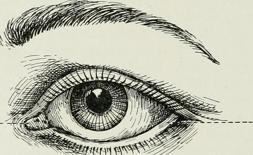 "Image from page 346 of ""The American encyclopedia and dictionary of ophthalmology Edited by Casey A. Wood, assisted by a large staff of collaborators"" (1913) 