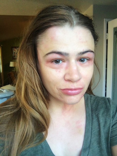 Hives hive hivegate skin hospital allergic allergy reaction