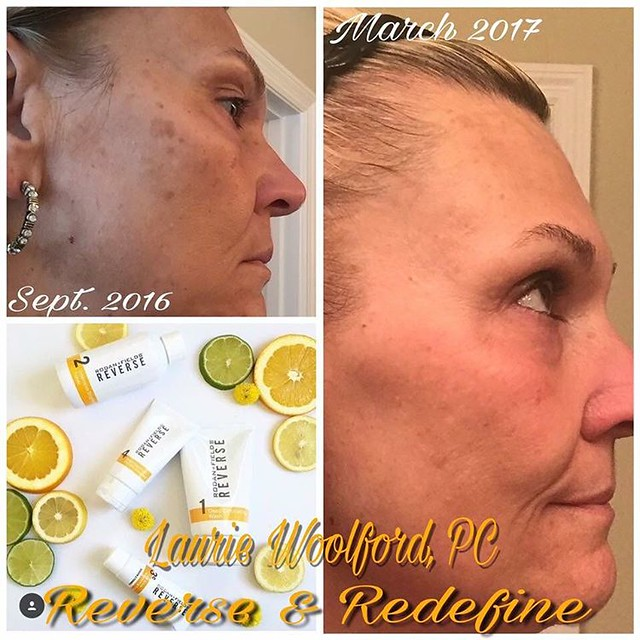 Skin discoloration, unevenness, dark spots and freckles ar ...