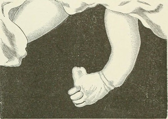 "Image from page 230 of ""Illustrated Medicine and Surgery"" (1888)"