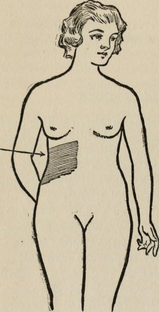 Jaundice Is A Symptom Of