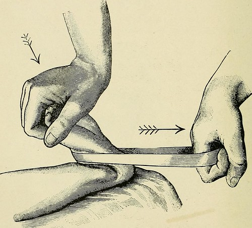 """Image from page 813 of """"A treatise on orthopedic surgery"""" (1910)"""