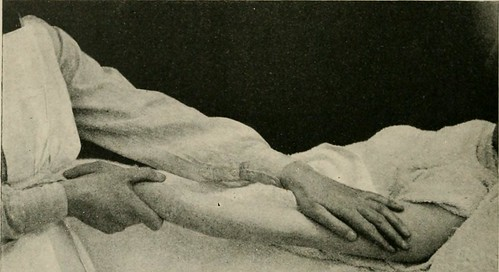 "Image from page 237 of ""Text-book of massage and remedial gymnastics"" (1916) 