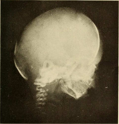 "Image from page 34 of ""Oral Roentgenology : a Roentgen study of the anatomy and pathology of the oral cavity"" (1917) 