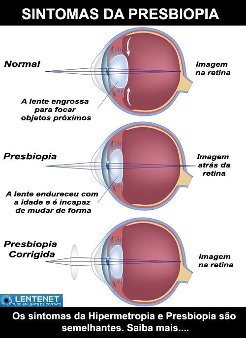 1f922c86e Sintomas da Presbiopia | by comerciallentenet Sintomas da Presbiopia | by  comerciallentenet
