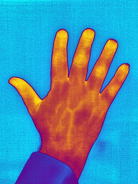 Thermal image of hand showing arteries
