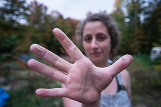 Tara's Hands with Lime-Induced Sores | by goingslowly