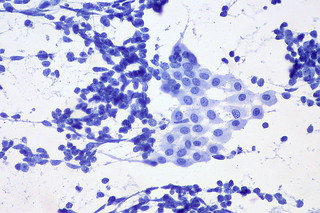 Small cell lung carcinoma vs. benign mesothelial cells | by euthman