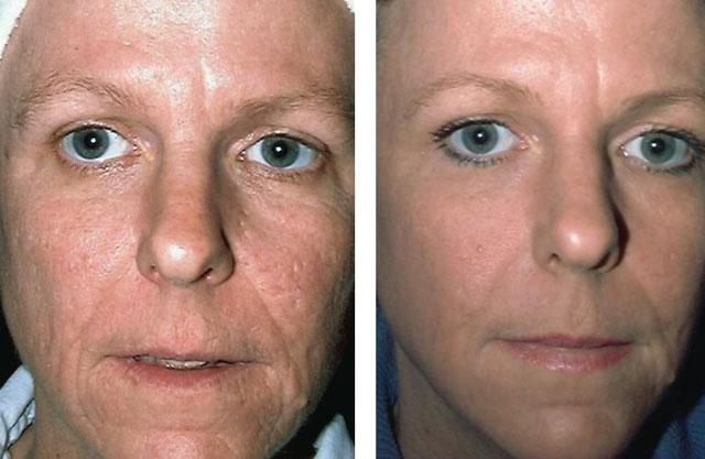 Acne Treatment Gallery Richmond VA | Cosmetic Facial Surgery