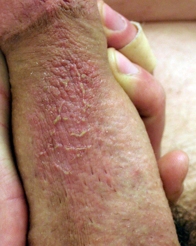 Burn remedy nair Nair Burning: