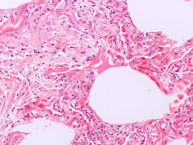 Diffuse alveolar damage-organizing/proliferative phase  Case 133