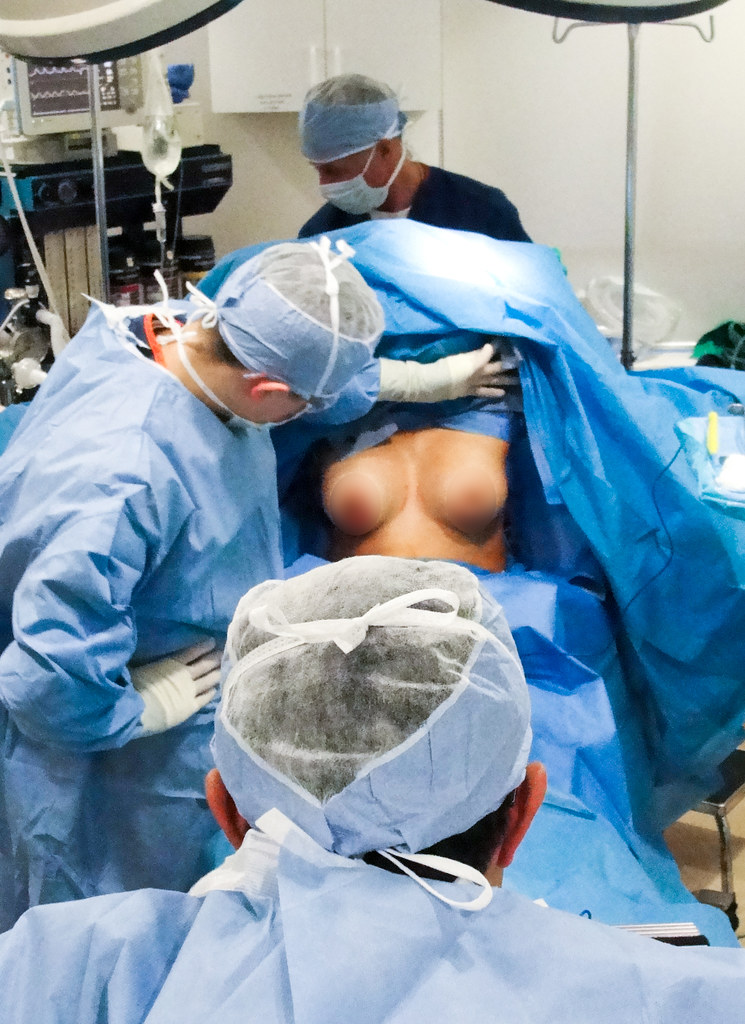 Breast Augmentation Pictures Taken During Breast Implant S Flickr