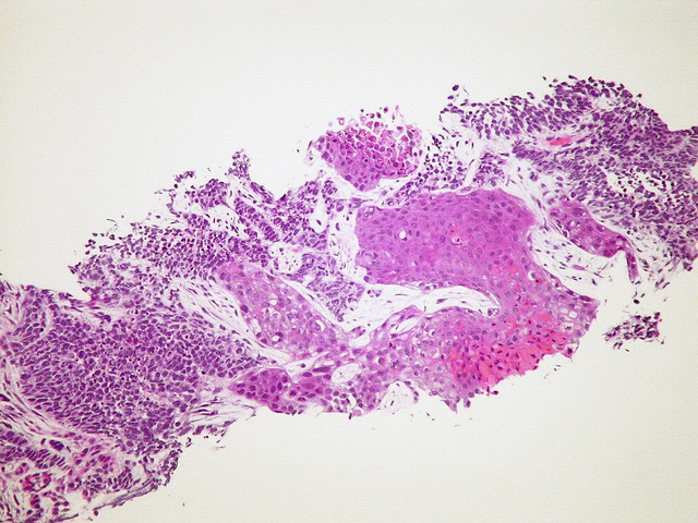 Small cell carcinoma, combined, with squamous cell carcinoma  Case 119