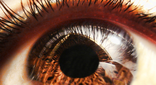 My Cornea looks like a Black hole! | by Rakesh Rocky