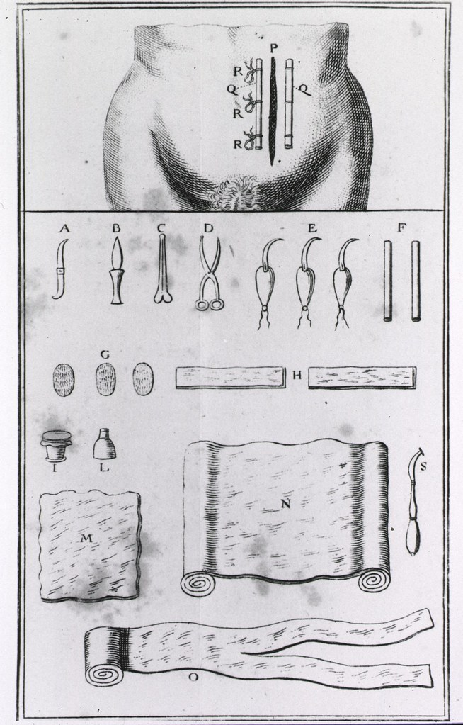 method of closing incision after a cesarean section | by national  library of medicine - history