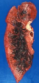 Cytomegalovirus pneumonia | by Pulmonary Pathology