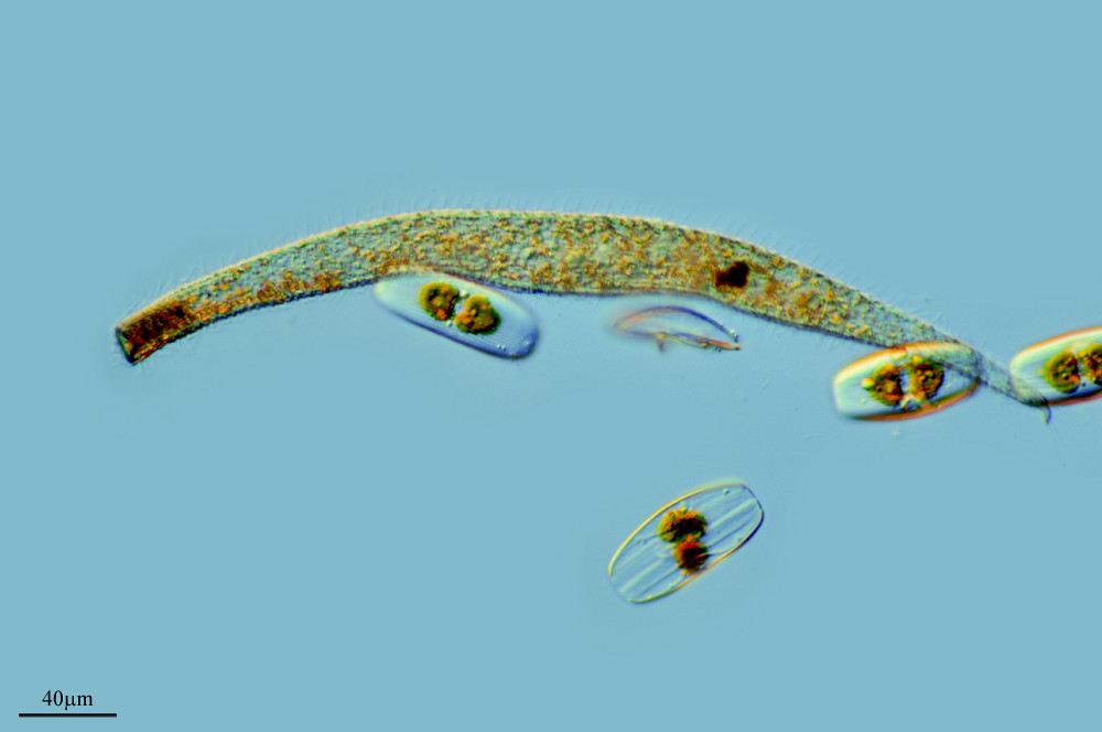TRACHELOCERCA ARENICOLA by PROYECTO AGUA** /** WATER PROJECT