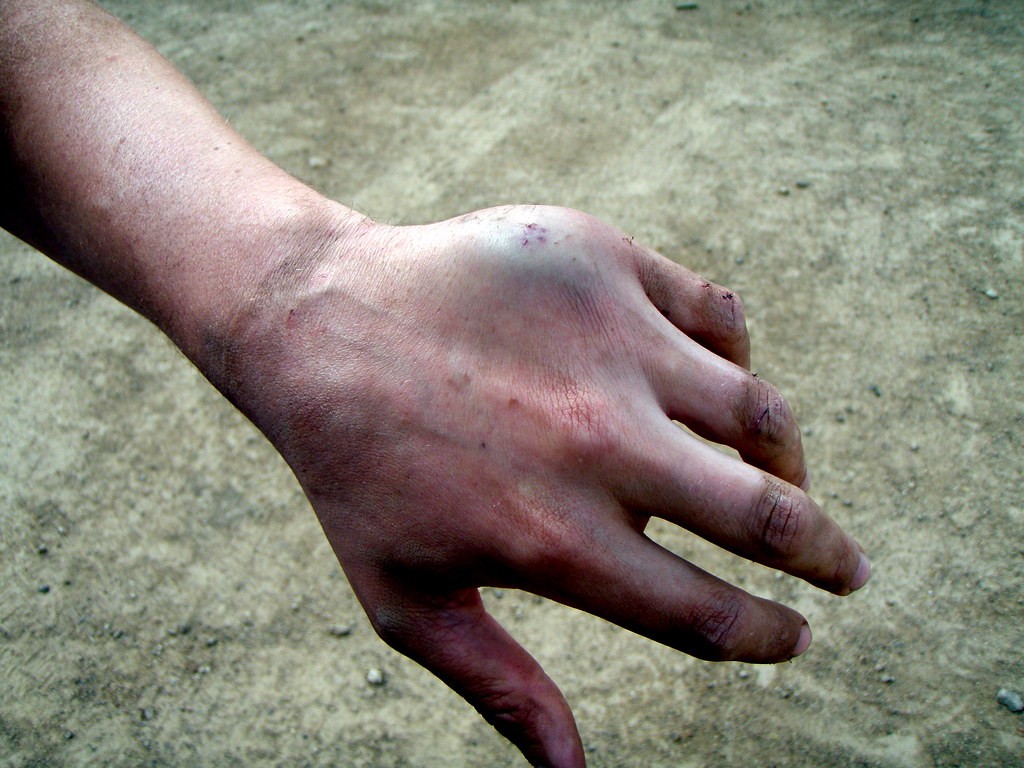 Seans Broken Hand Jeremy Hedrick Flickr