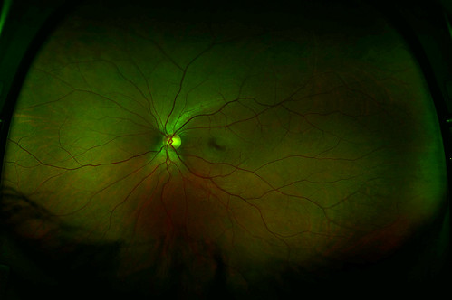 My Left Retina | by Martin Cathrae