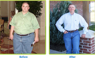 Before and after weight loss surgery   by jackiebese